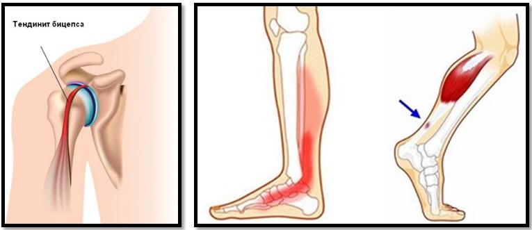 Alergarea și artroza articulației umărului