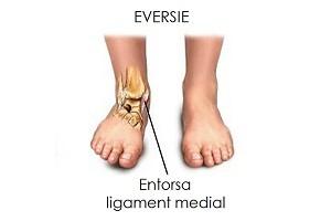 Ce trebuie să faceți când întindeți ligamentele gleznei (glezna)