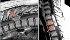 tratamentul miozitei genunchiului Tratamentul Artrozei Tiens