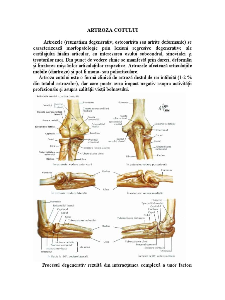 Prima etapă de artroză a articulației cotului