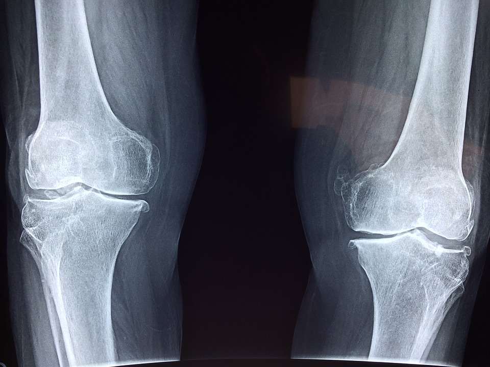 Artrita a genunchiului radiologic