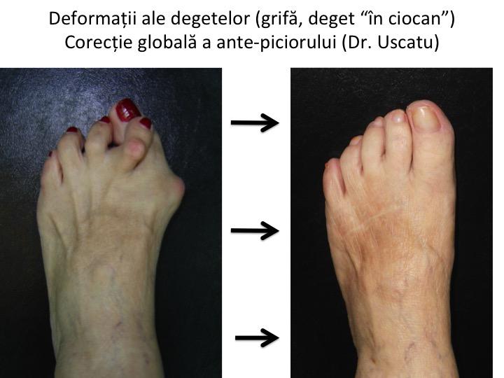 tratamentul articulațiilor piciorului Preț dureri articulare pe braț ce este