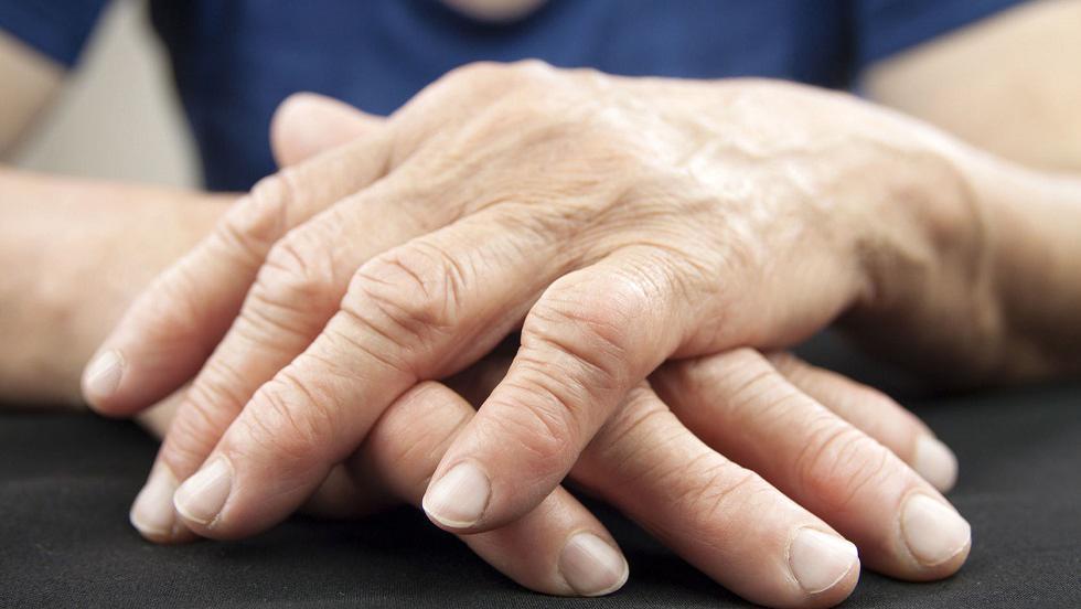tratează picioarele cu artrită reumatoidă