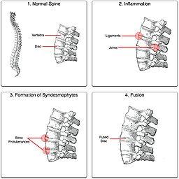 preparat articular și spinal