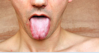 Candidoza de la A-Z: riscuri, diagnosticare, prevenire si tratament