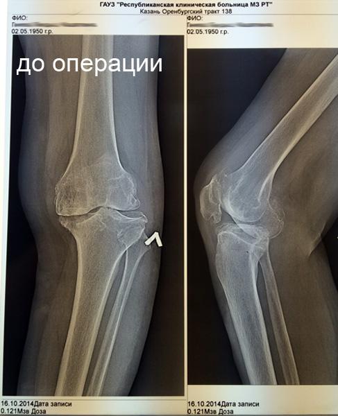 первичный гонартроз двусторонний ameliorarea durerii pentru inflamația articulară