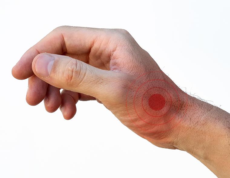 articulația din mâna dreaptă doare ce să facă condroprotectoare de ultimă generație pentru artroza articulației genunchiului