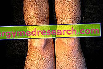 boli ale articulațiilor genunchiului uman crăpături și doare în articulații