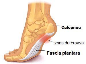 Inflamația articulației pe picior în apropierea degetului mare, Durerile de calcai