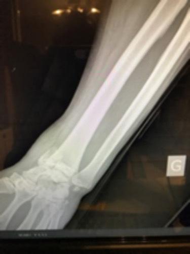 laparotomie care tratează articulațiile artroza tratamentului mâinii degetelor