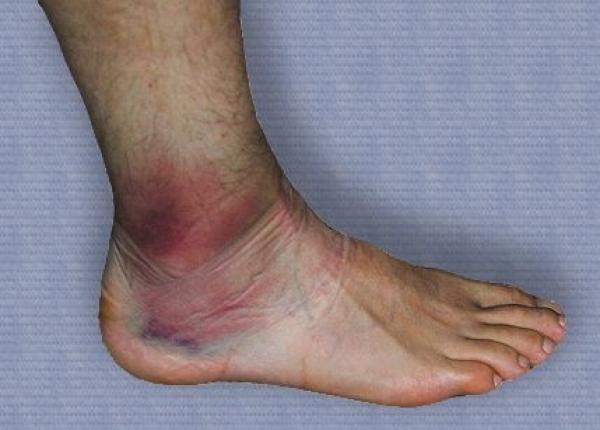 deteriorarea ligamentelor gleznei cum se aplică un bandaj
