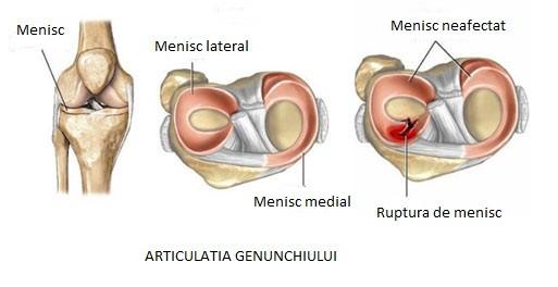 complicații ale genunchiului cu leziuni de menisc