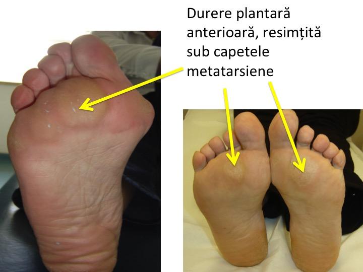 Sindroame Dureroase La Nivelul Membrelor, Durere în articulațiile metatarsiene ale picioarelor