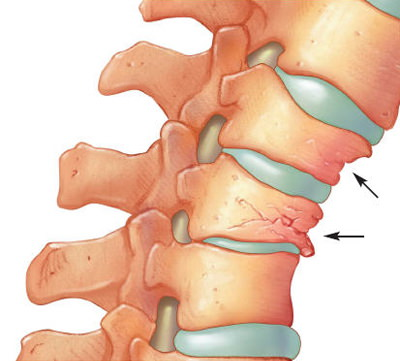 Metode de refacere a cartilajului articular | sfantipa.ro