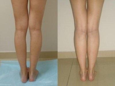 Tratamentul articulațiilor false ale piciorului inferior. Genunchi Rănit Cu Gripa