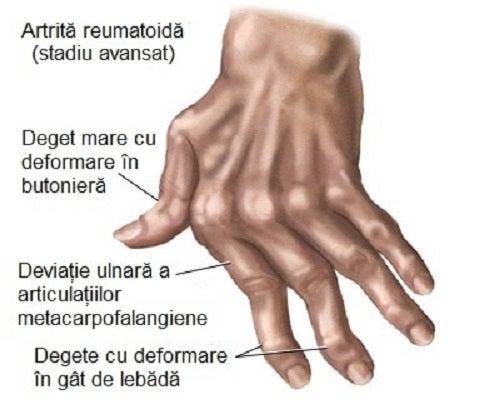 umflarea degetelor artrite