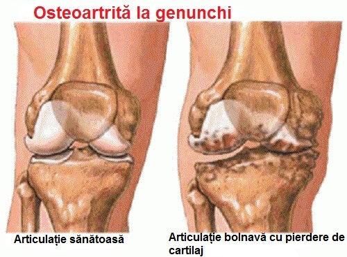 articulațiile doare numai în timpul zilei gonartroza tratamentului articulației genunchiului ce este