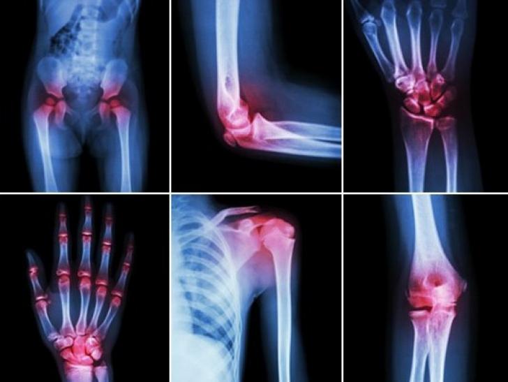 crizele și durerea articulației gleznei articulația doare pe mâini