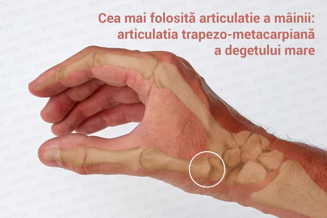 artroza articulațiilor degetului mare