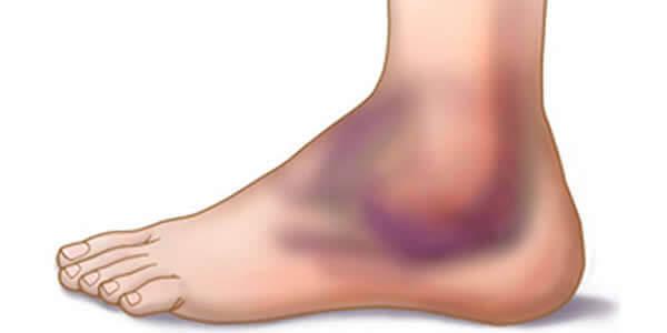 artroza genunchiului la vârsta de 20 de ani capsulă în articulația genunchiului cum să tratezi