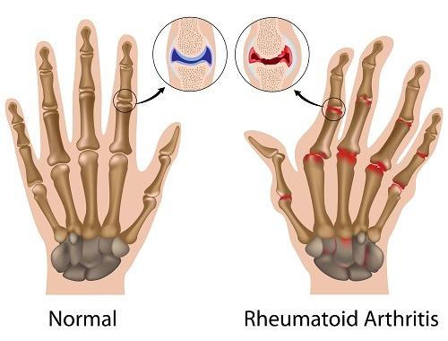 Debut de artrită reumatoidă a mâinii. Formular de căutare