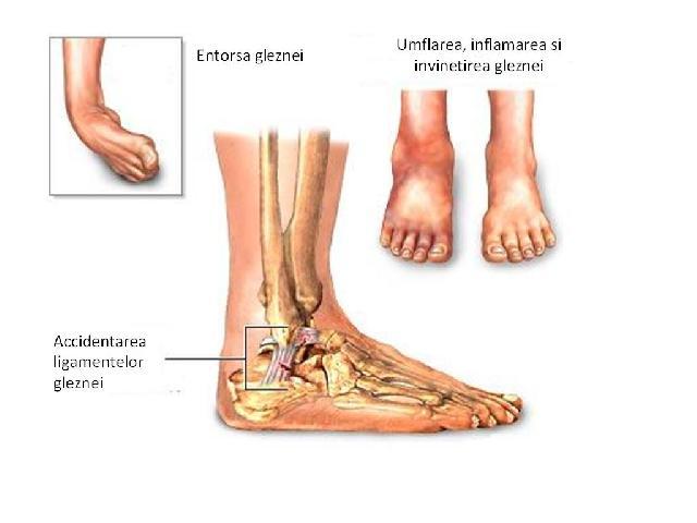 Umflarea pe articulația gleznei. Tipul leziunii ligamentare