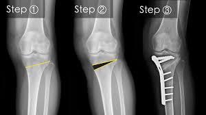 mod de a trata artroza