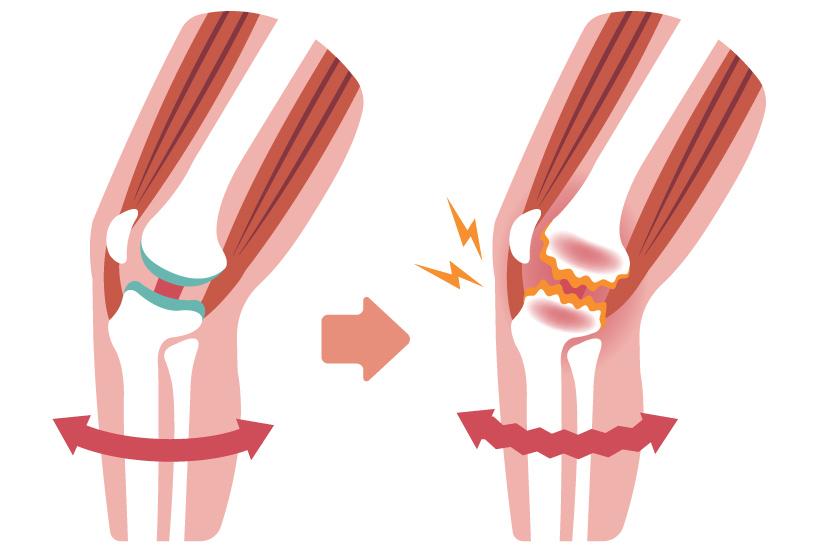 simptomele și tratamentul gonartrozei șoldului