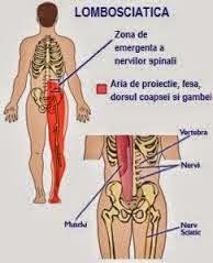 tratament articular slab artrita tratamentului articulației genunchiului la adolescenți