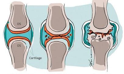 durere articulară scarlatină