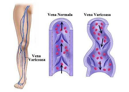 tratamentul venelor și articulațiilor ce boli ale articulațiilor artrita reumatoidă
