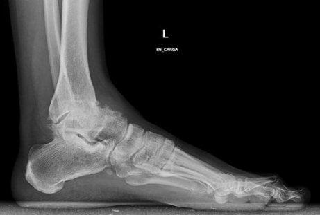 osteoartrita medicației articulației gleznei
