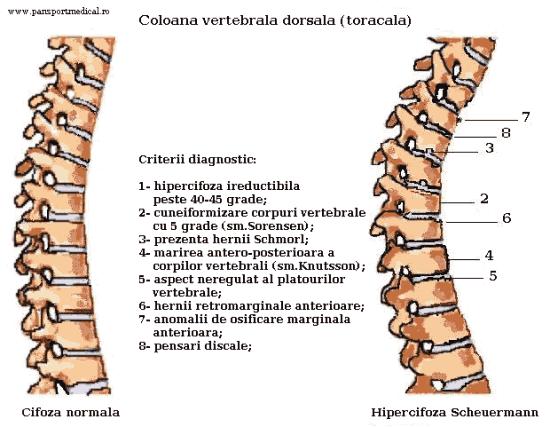 ce medicamente pentru a trata osteochondroza coloanei vertebrale atragerea durerii în articulația mâinii drepte