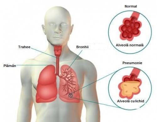 Dureri articulare pneumonia. Simptome Coronavirus