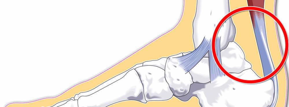 durere și mărirea articulațiilor durere în toate articulațiile cauze posibile