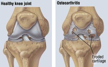 inflamarea tendoanelor articulare