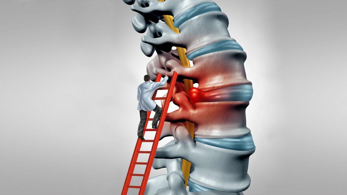 inflamația articulației vertebrale costale