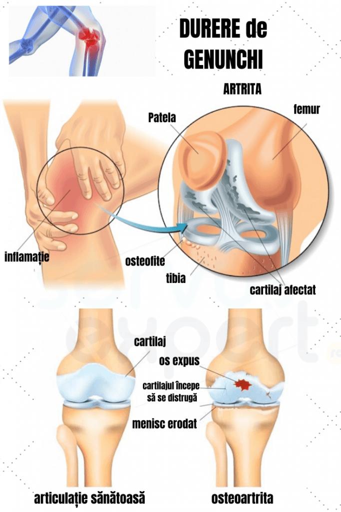 genunchii rănesc articulațiile crunch