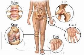 boli articulare tratabile