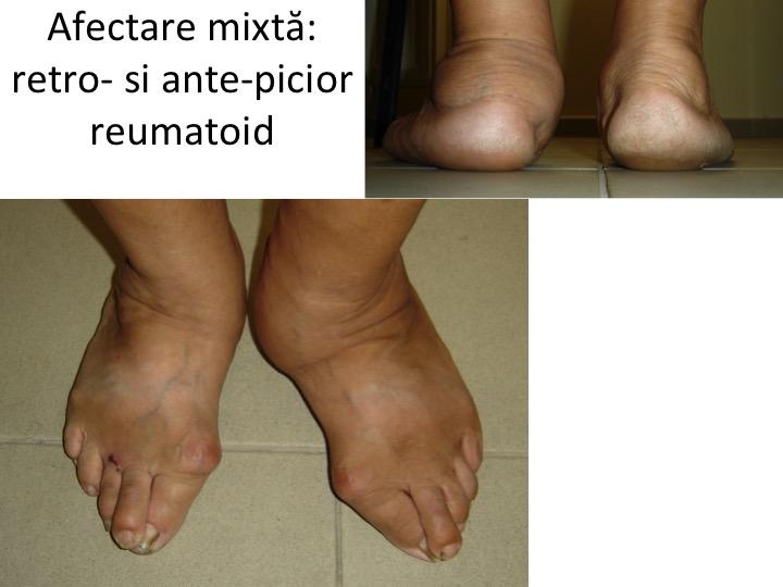 artrita reumatoidă degetele de la picioare articulațiile genunchiului zguduie ce să facă