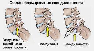 заболевания суставов позвоночника