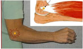 Cauze, tipuri, simptome și tratamentul epicondilitei cotului