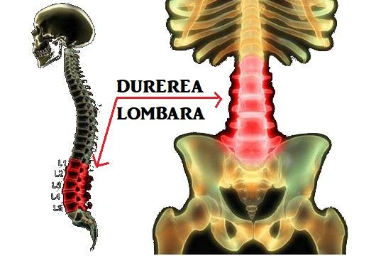 tratament dureri lombare articulația umflată pe picior cum se tratează