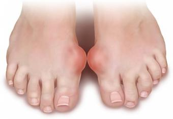 artrita guta pe degete