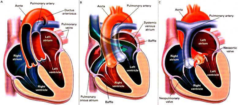 Tratamentul articulației circulației sângelui