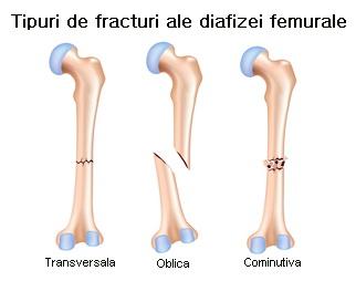 timpul de recuperare a fracturilor de genunchi medicamente pentru distrugerea articulațiilor