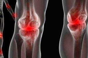 Artrita gonococică | Reumatologie