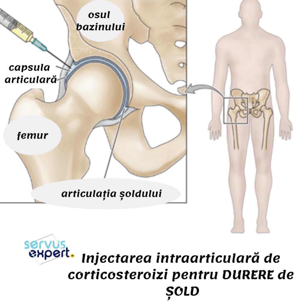 tratamentul medicamentos al durerii în articulația șoldului unguente și tablete pentru articulații