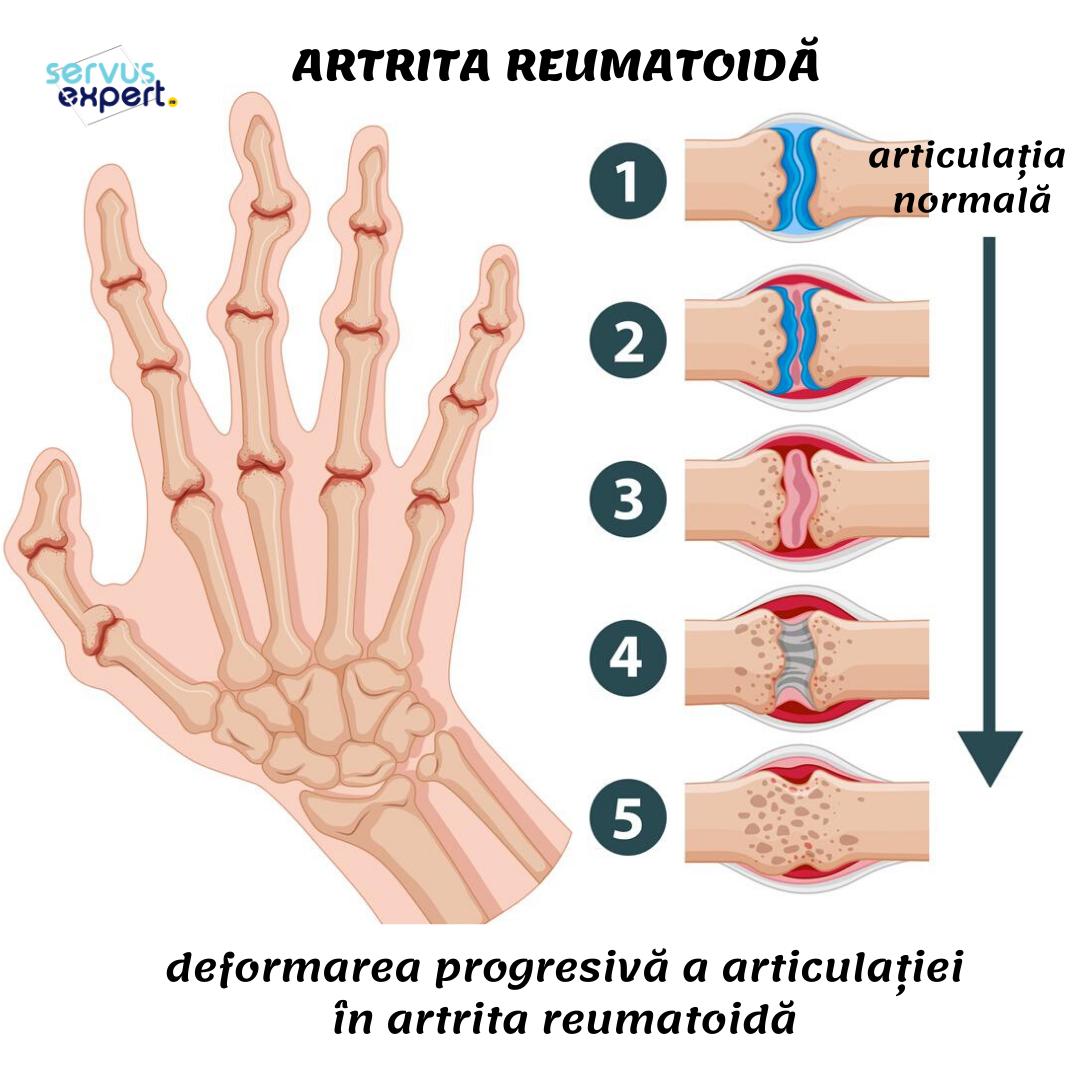 Ce sunt reumatismele?
