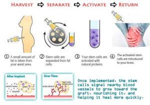 Recenzii ale tratamentului articulațiilor cu celule stem